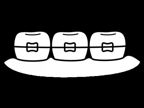 歯列矯正の白黒イラスト