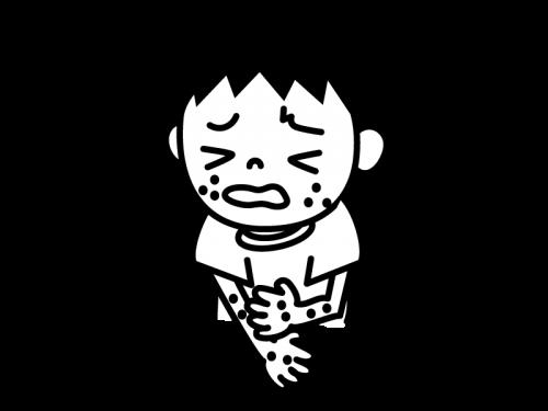 アレルギー・湿疹の白黒イラスト